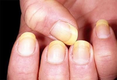 Dấu hiệu bệnh qua màu sắc móng tay 3