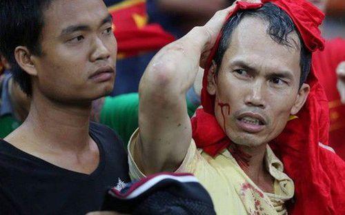 Đêm kinh hoàng, không thể nào quên của CĐV Việt Nam trên đất Malaysia tại AFF Cup 2014