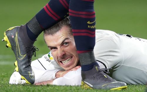 Khoảnh khắc thể thao khó đỡ: Gareth Bale nhe răng tức giận qua khe chân