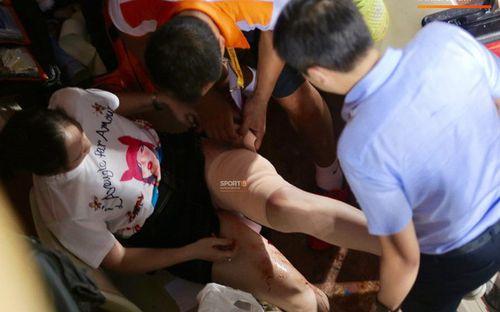 Báo hàng đầu châu Á bàng hoàng khi thấy fan nữ đổ máu vì bị pháo bắn trúng, ngán ngẩm trước vấn nạn pháo sáng tại làng bóng đá Việt