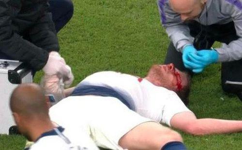 Kinh hoàng: Đồng đội của Son Heung-min chảy máu đầm đìa, nôn ọe, không thể tự bước đi sau khi dính chấn thương nghiêm trọng ở vùng đầu