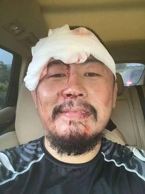 Từ Hiểu Đông bê bết máu trên mặt, phải khâu 26 mũi vì ăn no đòn của võ sĩ Muay Thái