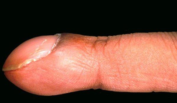 Dấu hiệu bệnh qua màu sắc móng tay 12